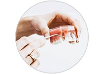 Soins des Appareils Dentaires